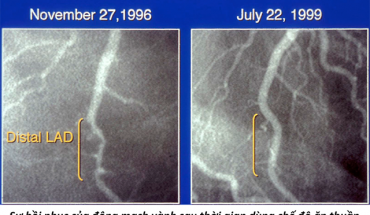 bệnh động mạch vành hồi phục sau 3 năm
