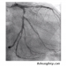 Chụp động mạch vành DSA