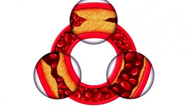 Nguy hiểm của bệnh động mạch vành